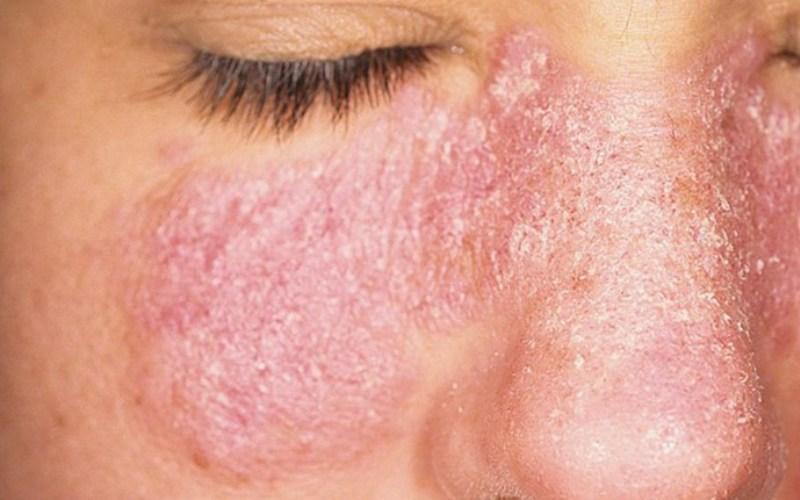 себорея на коже лица, внешний вид