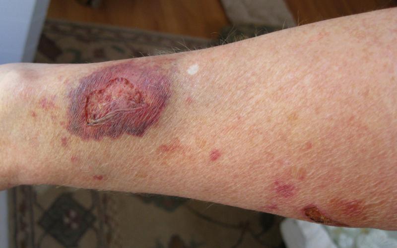 атрофия кожи при неправильном лечении экземы