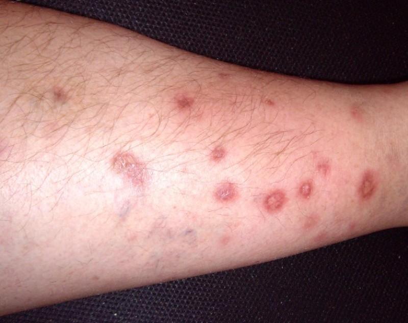 кожные симптомы саркоидоза
