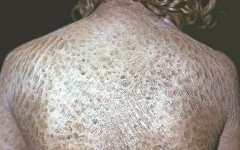 Ихтиоз, наследуемый вместе с полом
