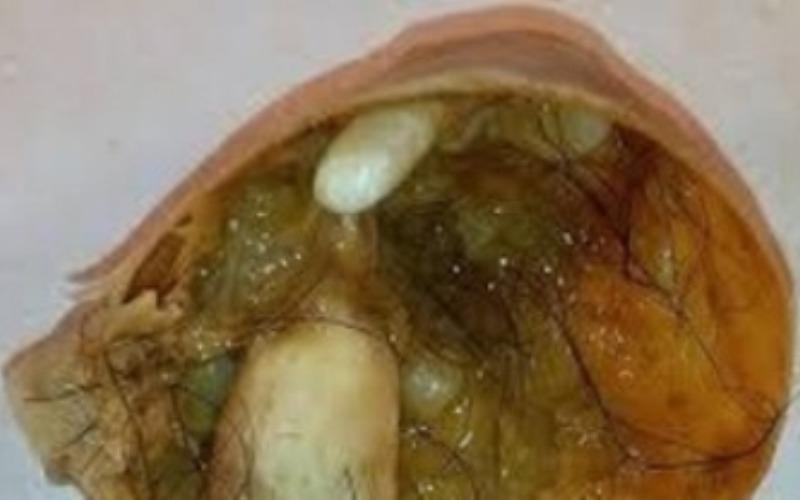 киста в разрезе содержит жир, волосы, кожу, зубы