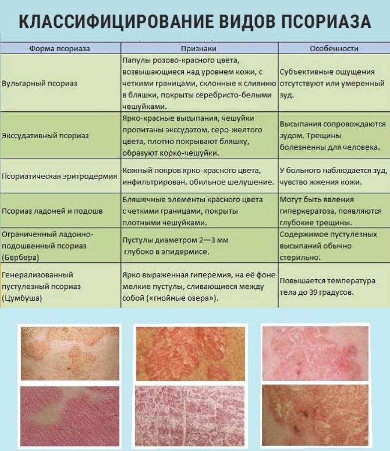 классификация форм псориаза