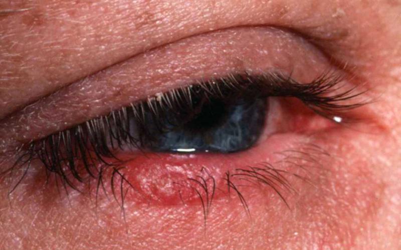 офтальморозацея