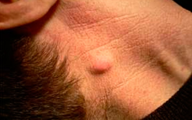 Внешний вид красной шишки на шее мужчины от абсцесса