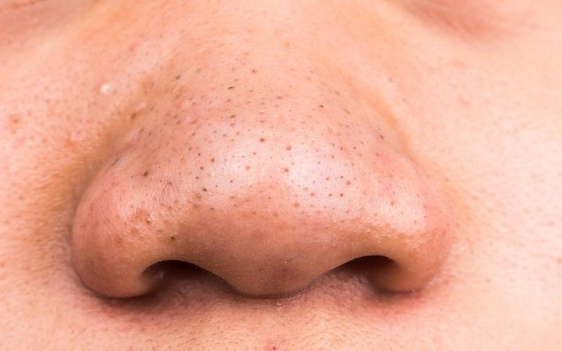 Внешний вид прыщей акне на носу у женщин