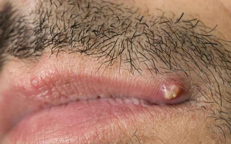 Внешний вид проявления акне на губе