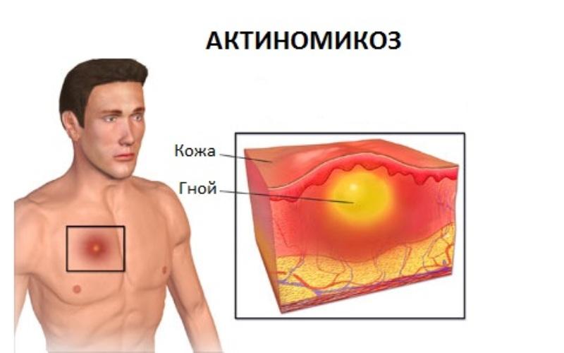 схема, актиномикоз кожи