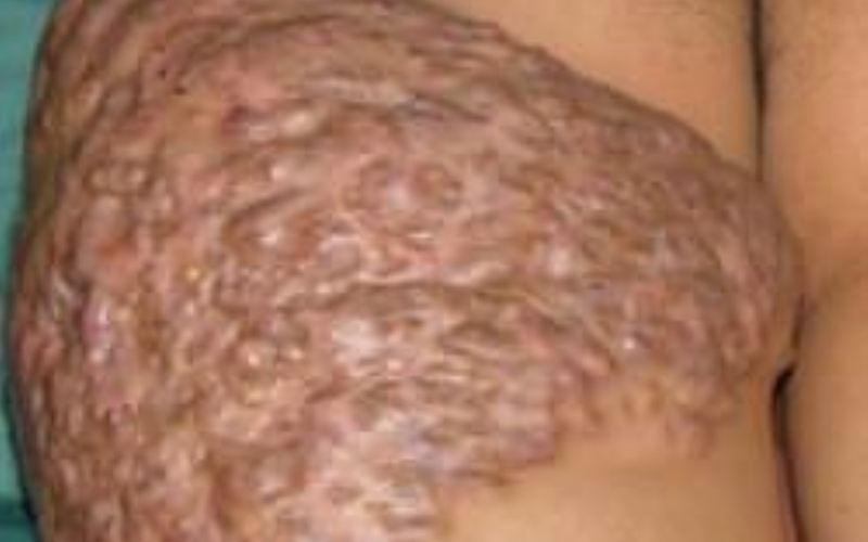 актиномикодх кожи