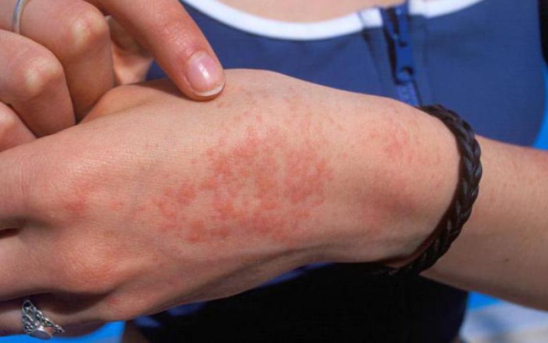 Симптомы проявления аллергии на руке
