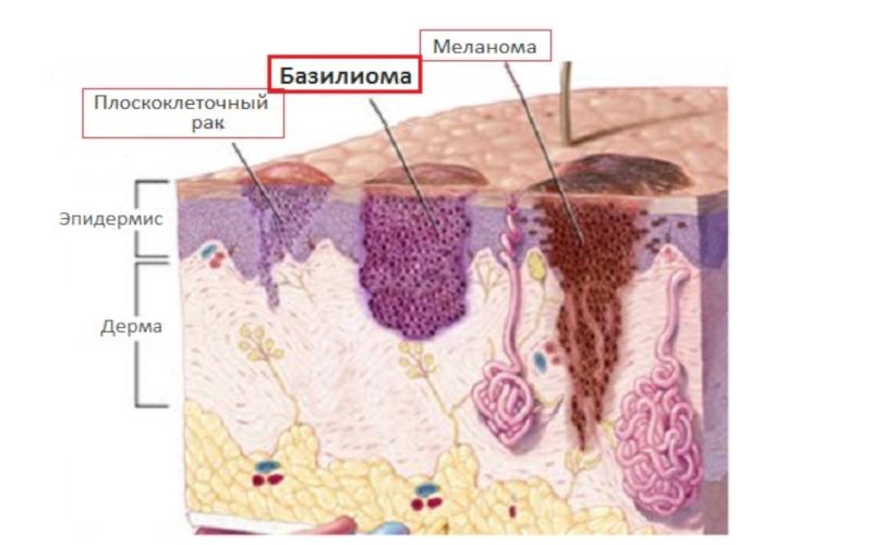 строение кожи и рост базилиомы в втканях в глубь
