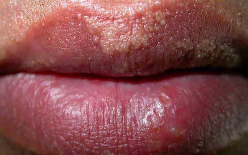 Внешний вид прыщ на губах от болезни Фордайса