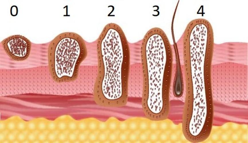 стадии роста базилиомы, прорастание в ткани
