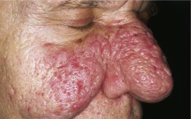 гипертрофия тканей при демодекозе