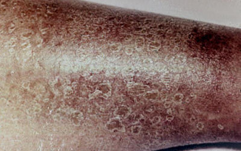 Эритематозно-геморрагический тип рожистого воспаления