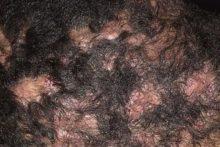 Перифолликулит Гофмана, покраснение кожи, выпадение волос