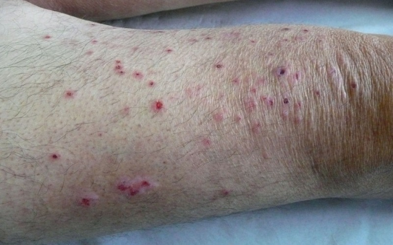 высыпания при дерматозах