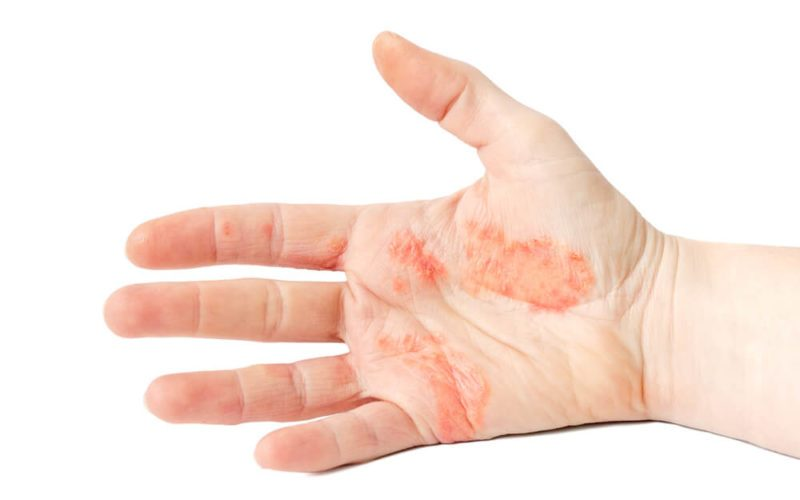 Симптомы проявления экземы