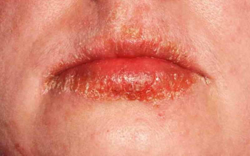 Внешний вид прыщей на губах от экземы