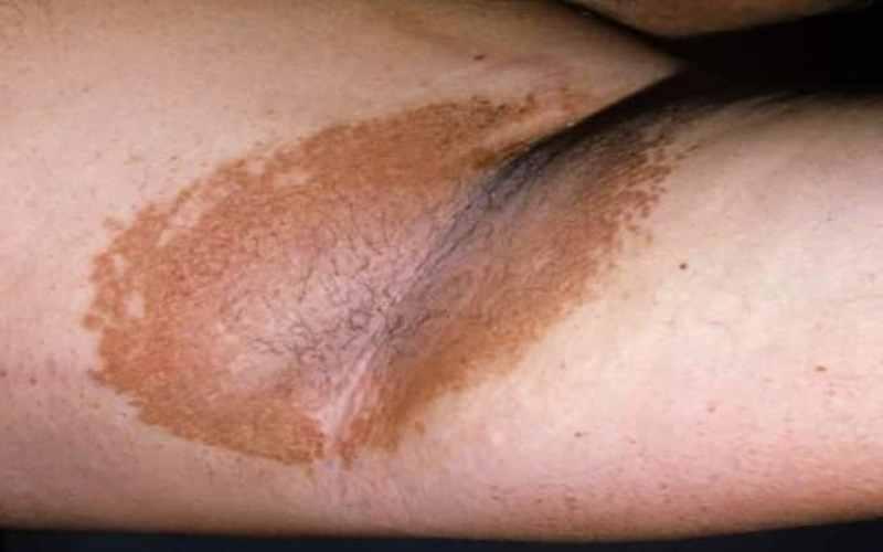 Эритразма, пятно коричневого цвета