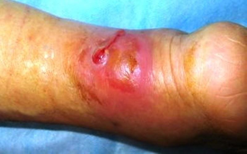 флегмона на ноге