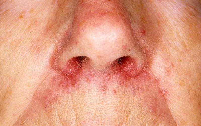 Прыщи на носу у женщин от фолликулита