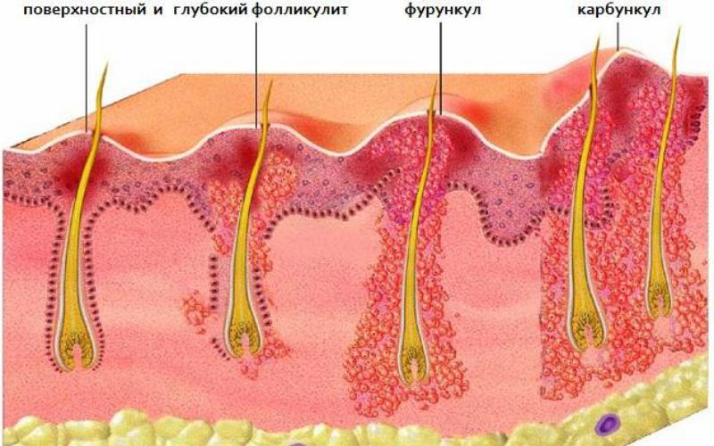 Отличия между фурункулом, карбункулом, фолликулитом