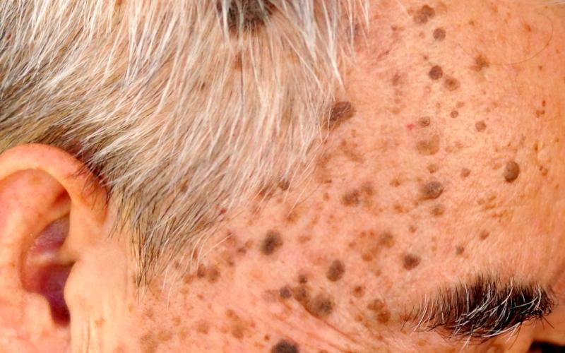 Себорейный гиперкератоз, старческие пятна на коже