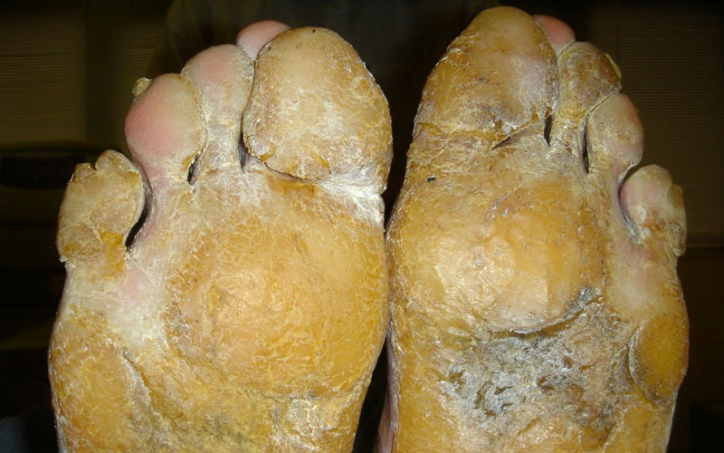Кератодермия, болезнь кожи, сильное разрастание и огрубение кожи