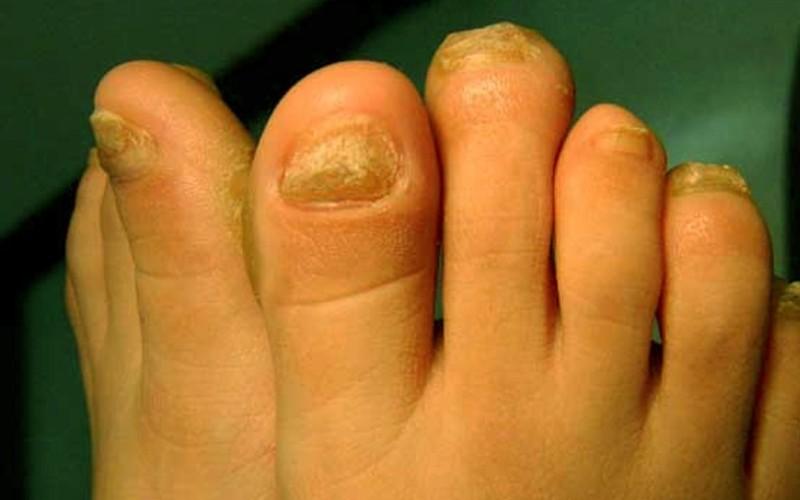 Ногтевой гиперкератоз при грибке ногтей