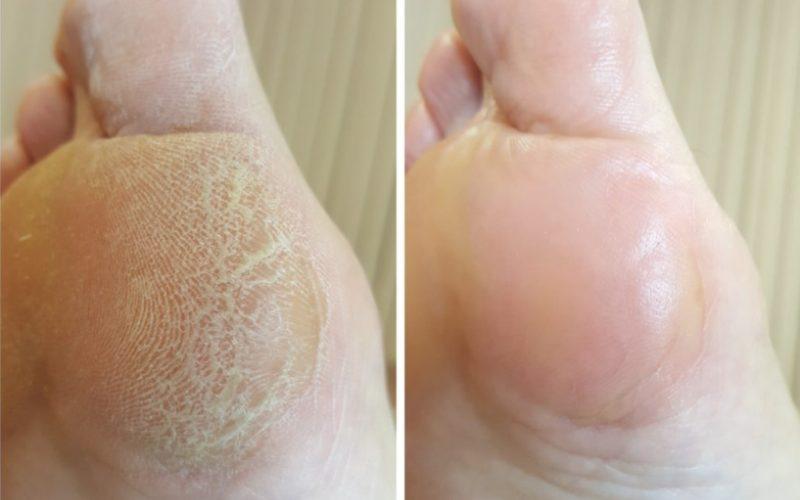 Обычный гиперкератоз стоп, удаляется пемзой, таже стопа после удаления загрубевшей кожи