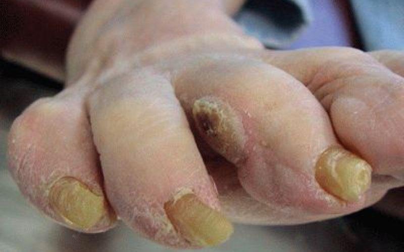 Стержневая мозоль при грибке стопы и ногтей