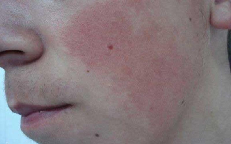 Гиперкератоз кожи лица у подростка