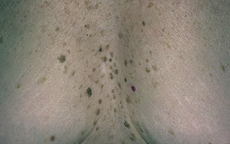 Гиперкератоз кожи в области груди