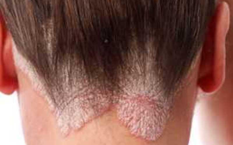 грибок коди головы, шелушение, утолщение кожи, зуд