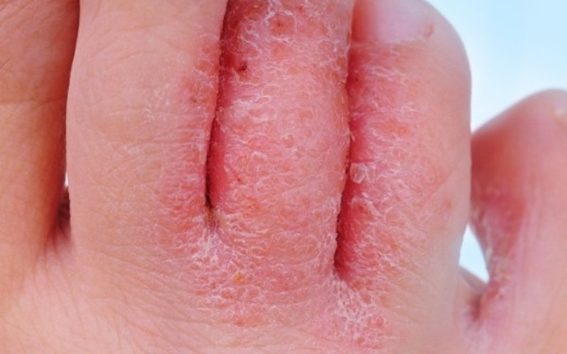 гибок кожи с покраснением и шелушенеим