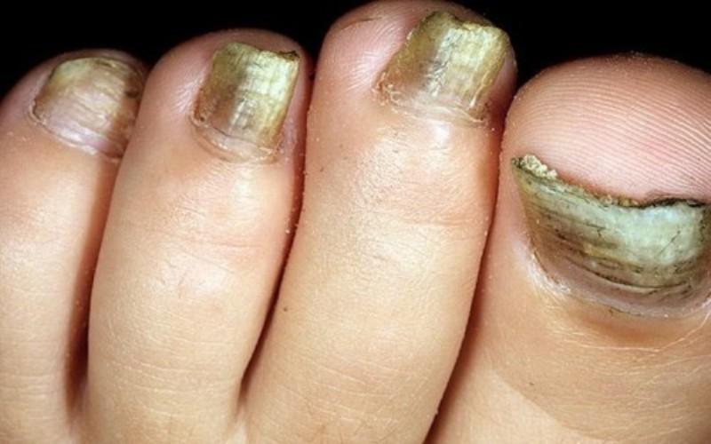 грибок ногтя, утолщение, деформация, изменение цвета, отслаивание