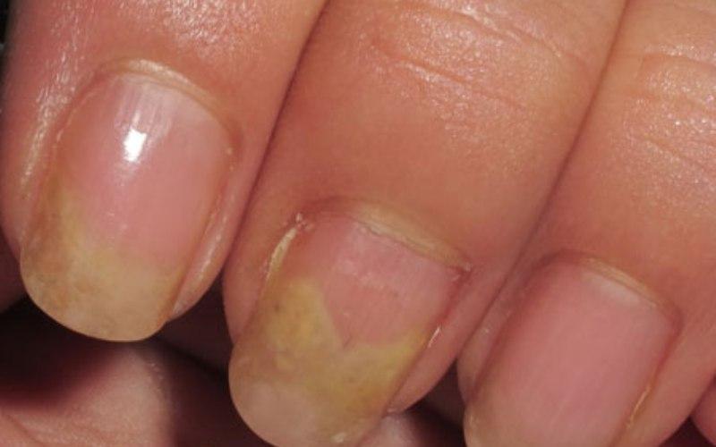 грибок на ногтях рук, изменение цвета, деформация