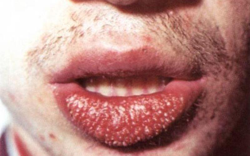 Внейшний вид хейлита на губе