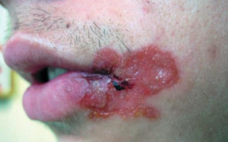 буллезное импетиго, пузырь с кровянистым содердимым, сталия заживления