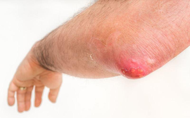 Карбункул - причины появления, симптомы и лечение