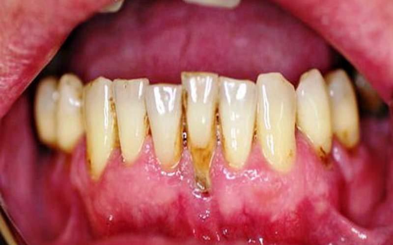 парадонтоз, оголенией шейки зуба, дистрофия десны