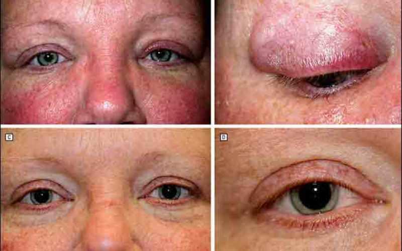 признаки саркоидоза, проявляющиеся на коже вокруг глаз