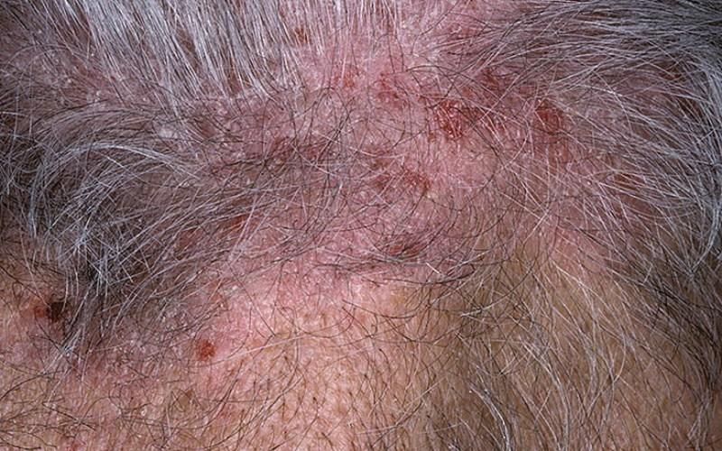 Декальвирующий нейродермит, высыпания на волосистой части головы