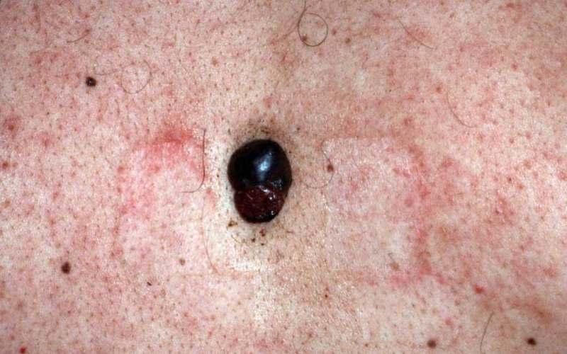 Нодулярная меланома, узелок над кожей