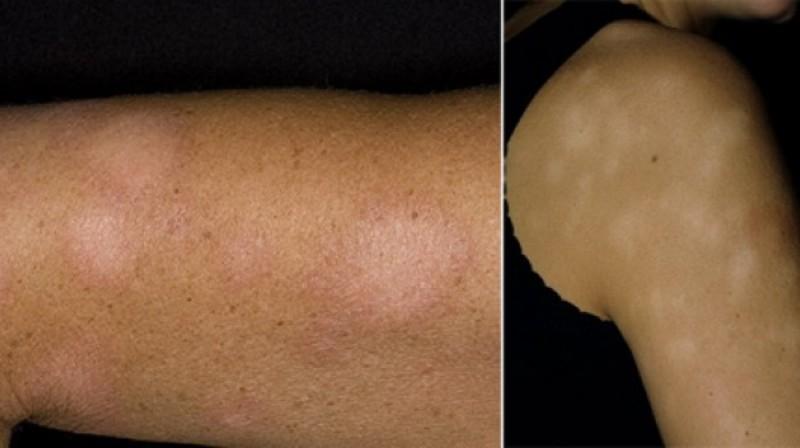 Депигментированные участки кожи после стрептодермии