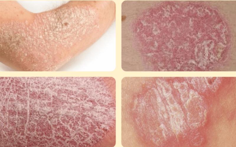Вульгарный псориаз, бляшки и шелушение на коже