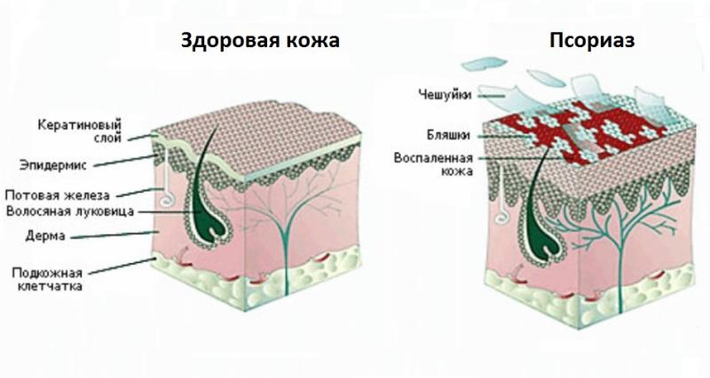 отличия здоровой кожи и пораженной псориазом, схема