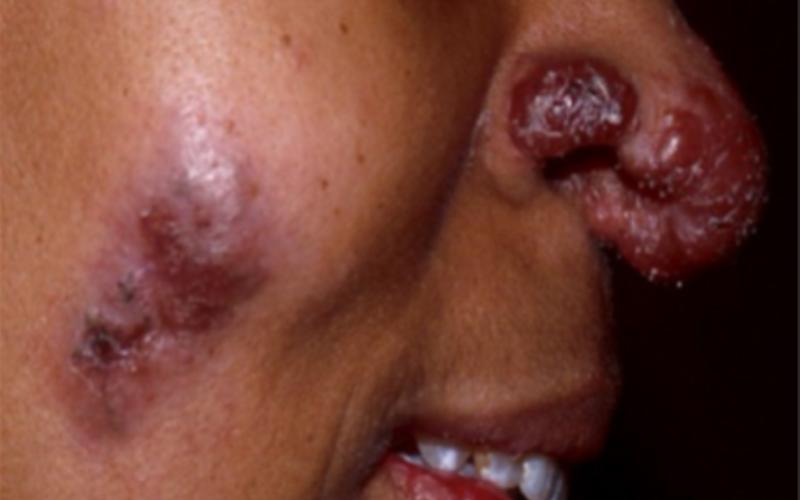Саркоидозные узелки и язвы на лице