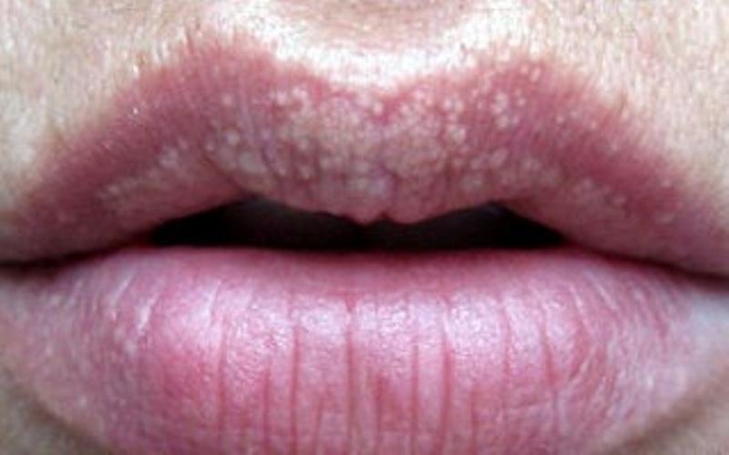 гранулы Фордайса, на губах