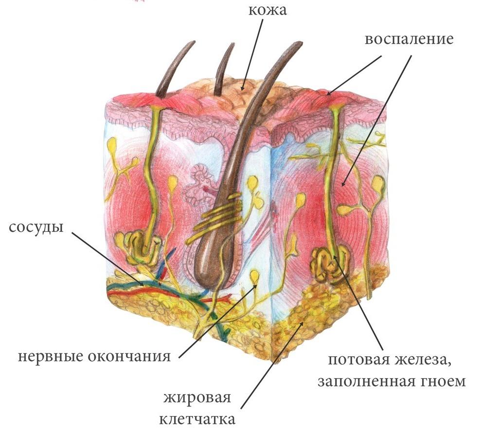 Схема воспаления гидраденитом